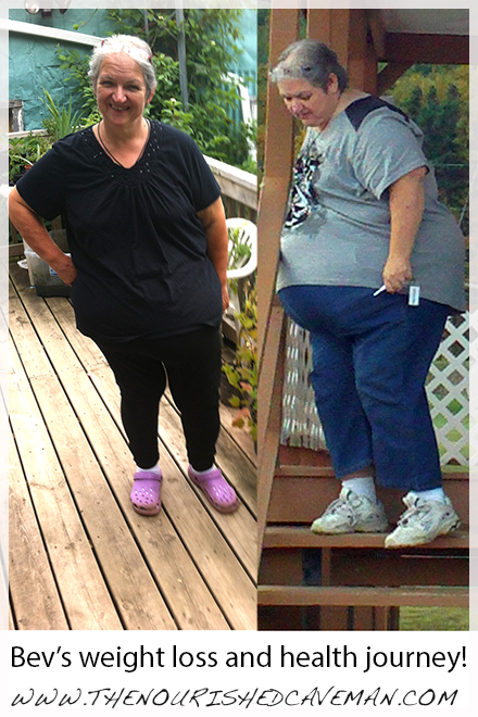 Bev S Story Reversing Diaes And Weight Loss Journey By The Nourished Caveman
